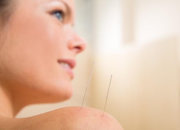 Acupunctuur naald prikken op vrouw schouder