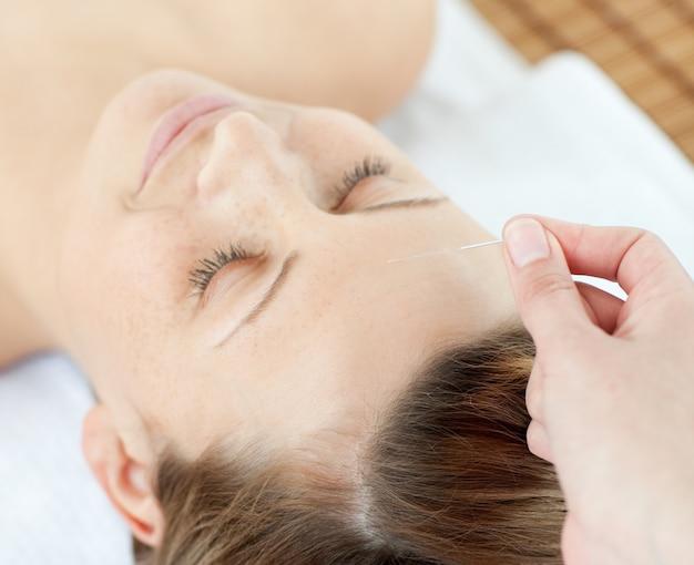 Acupunctuurnaalden op het hoofd van een aantrekkelijke vrouw
