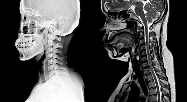 Afbeelding van de cevicale wervelkolom normale x-stralen en mri: tonen ernstige vernauwende schijfruimte c4-5 met erosie en sclerose van eindplaten