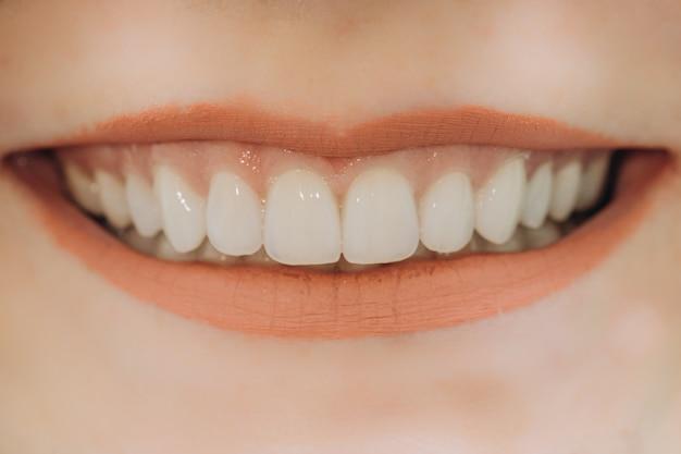 Afgewerkte keramische frontkronen. 8 eenheden tandheelkundige fineer.
