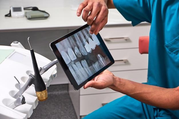 Afrikaanse mannelijke tandarts die röntgenstraal op tablet verklaart