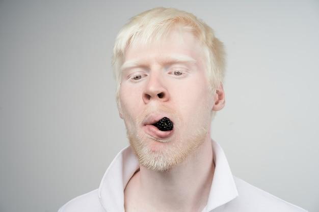 Albinisme albino man in studio gekleed t-shirt geïsoleerd op een witte achtergrond. abnormale afwijkingen. ongebruikelijk uiterlijk