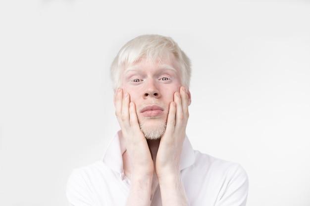 Albino man in studio gekleed t-shirt geïsoleerd op een witte