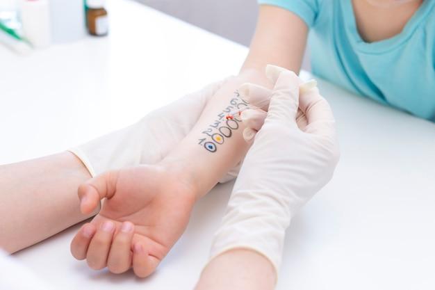Allergeentest bij de hand. kind dat procedure van allergeenhuidtest ondergaat in kliniek.