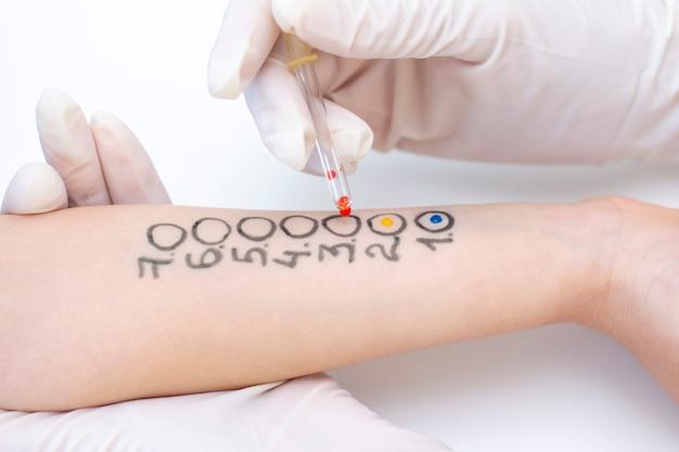 Allergeentest bij de hand. procedure van allergeenhuidtest in kliniek.