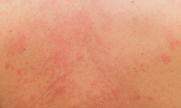 Allergische uitslag op het lichaam van de patiënt.