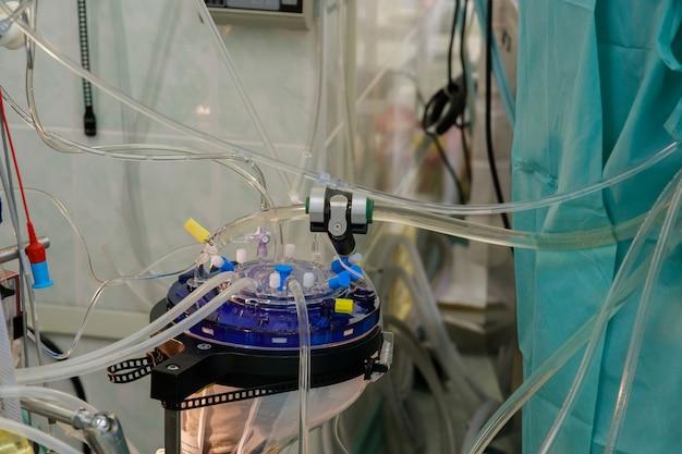 Apparatuur circulatie bloed hart longmachine voor hartchirurgie in operatiekamer