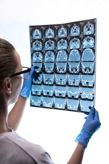 Arts die een röntgen van de hersenen van een patiënt onderzoekt.