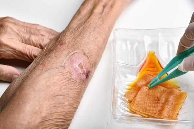 Arts die geïnfecteerde wond schoonmaakt en wast bij chronische diabetespatiënt met normale zoutoplossing en povidonjodium