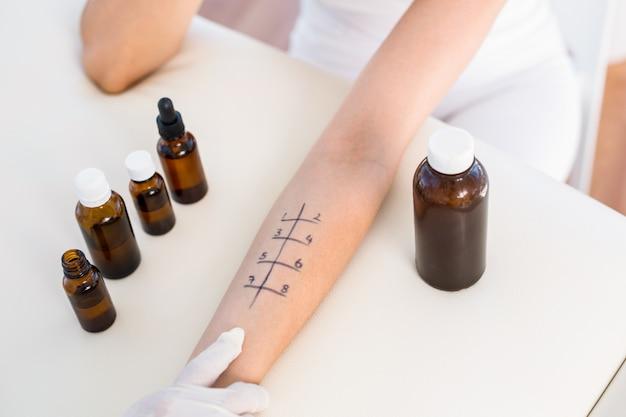 Arts die huidpriktest doet bij haar patiënt