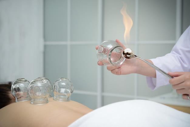 Arts die koppen voorbereiden om op de patiënt terug voor het tot een kom vormen van behandeling, traditionele chinese geneeskundebehandeling te plaatsen.