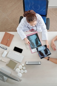 Arts die röntgenfoto's van de borst controleert