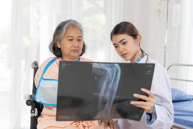 Arts informeert gezondheidsonderzoeksresultaten van röntgenfilm om oudere oudere vrouw aan te moedigen patiënten met een gebroken arm in het ziekenhuismedische seniorconcept