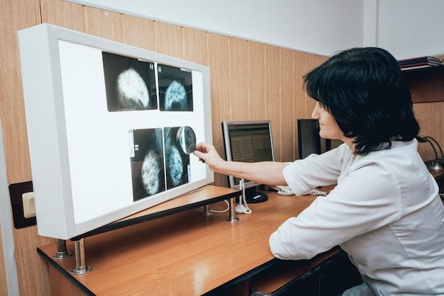 Arts onderzoekt mammografietest. medische apparatuur in het ziekenhuis