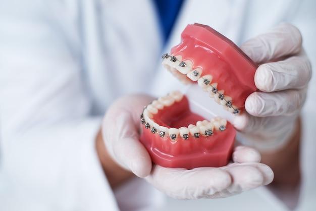 Arts-orthodontist laat zien hoe het systeem van beugels op tanden is gerangschikt