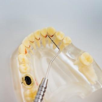 Arts-orthodontist toont het instrument op cariës in de tanden