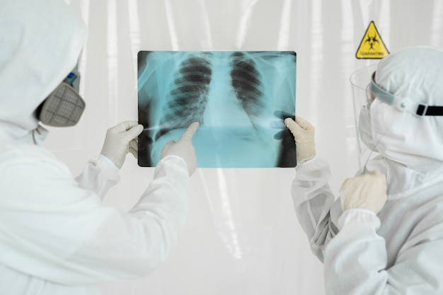 Artsen epidemiologen onderzoeken röntgenfoto's van longontsteking bij een covid-19-patiënt. coronavirus concept