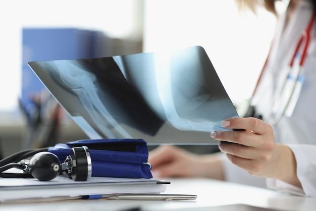 Artsen handen houden x-ray in office close-up. stralingsdiagnose van artritisconcept