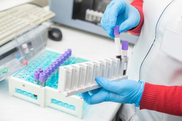 Artsenhand die een bloedmonsterbuis in het laboratorium nemen