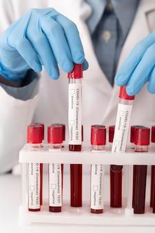 Assortiment bloedmonsters coronavirus in laboratorium