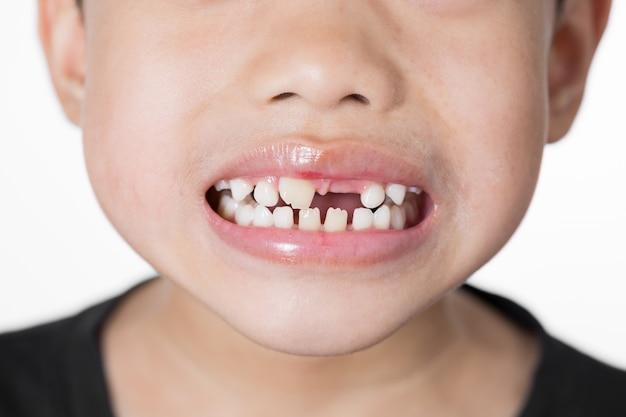 Aziatische jongen gebroken tand op witte achtergrond