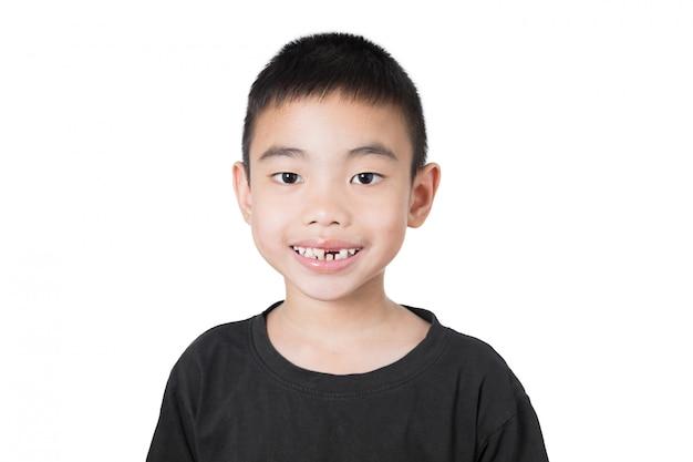 Aziatische jongen van glimlach met gebroken tand, duimen omhoog op witte achtergrond