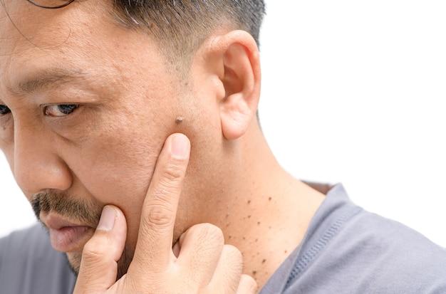 Aziatische man van middelbare leeftijd zorgen over grote huidmarkeringen of acrochordon op gezicht