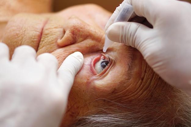 Aziatische senior of oudere oude dame vrouw druipende medische druppels in haar oog door arts