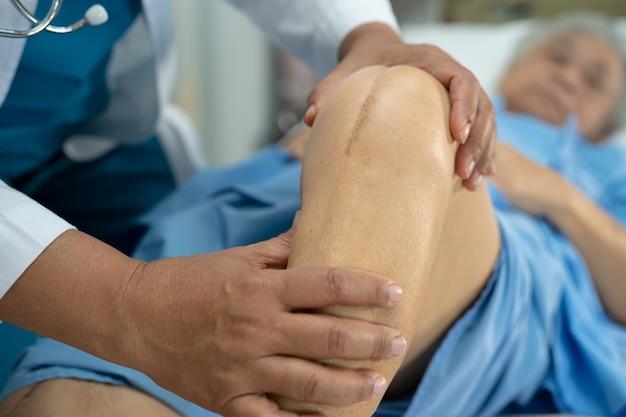 Aziatische senior of oudere oude dame vrouw patiënt toont haar littekens chirurgische totale kniegewricht vervanging hechting wond chirurgie artroplastiek op bed in verpleegafdeling ziekenhuis, gezond sterk medisch concept.
