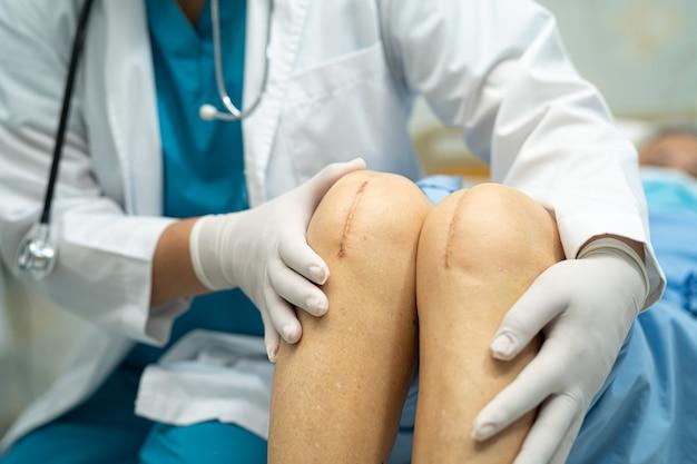 Aziatische senior of oudere oude dame vrouw patiënt toont haar littekens chirurgische totale kniegewrichtsvervanging suture wondoperatie artroplastiek op bed in verpleeg ziekenhuisafdeling, gezond sterk medisch concept.