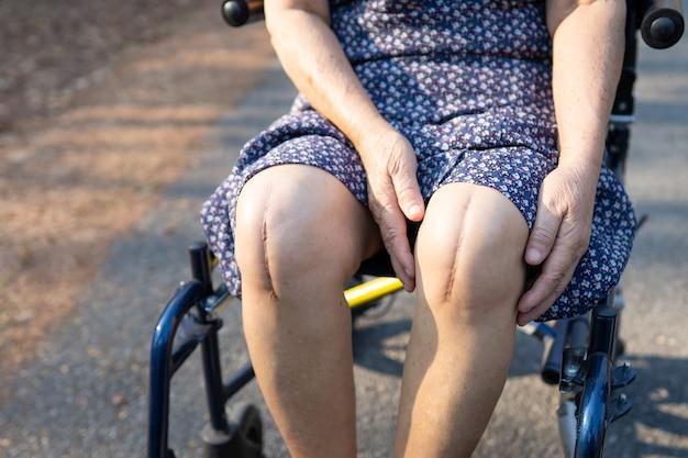 Aziatische senior vrouwelijke patiënt toont haar littekens chirurgische totale kniegewrichtvervanging