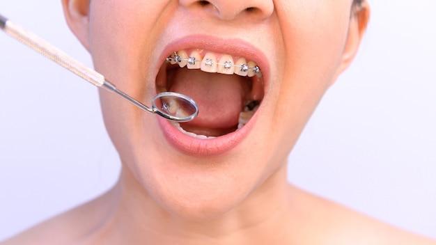 Aziatische vrouw die orthodontische pal draagt. tandverzorging en gezonde tanden.