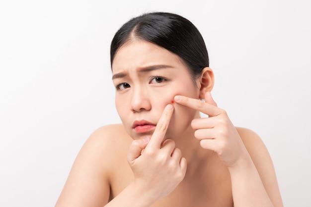 Aziatische vrouw die puistjes op haar gezicht drukken, de levensstijlconcept van de huidzorg.