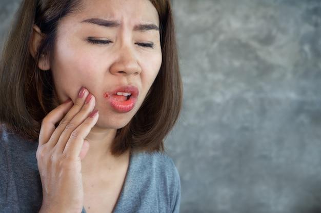 Aziatische vrouw met mondziekte, droge huid op de hoek van de lippen of hoekige cheilitis