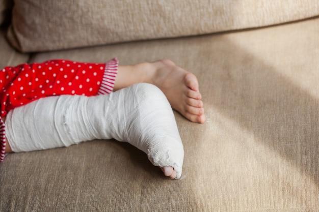 Been in gips van een tienermeisje op een bank na een accidentele val met een enkelbreuk
