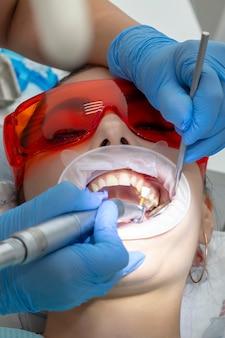 Behandeling van tandbederf. meisje bij de receptie bij de tandarts