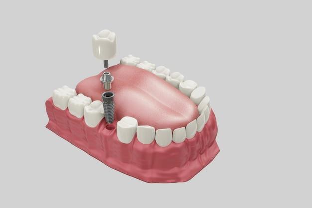 Behandeling van tandheelkundige implantaten. medisch nauwkeurige 3d illustratie kunstgebit concept.