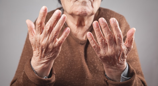 Bejaarde die haar handen toont.