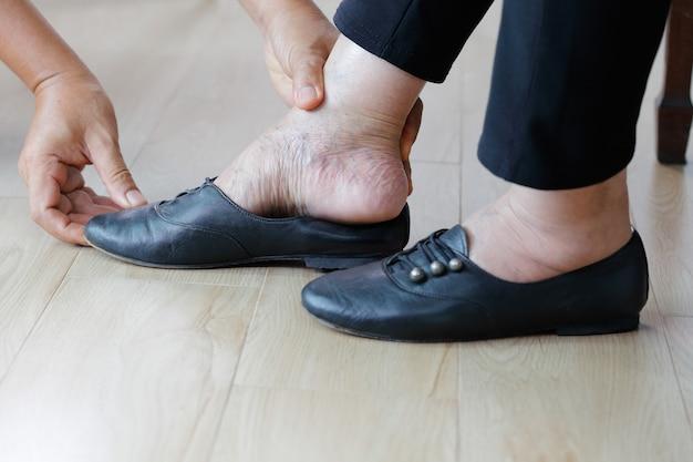 Bejaarde gezwollen voeten die schoenen zorvuldig op zetten.