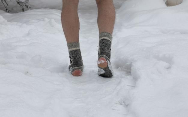 Benen in gescheurde sokken in de sneeuw