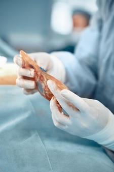 Beschadigd vrouwelijk borstimplantaat, close-up, de handen van de dokter houden de verwende ispander vast die is afgeleverd tijdens oncologische operatie aan de vrouwelijke borst, vechtend tegen borstkanker