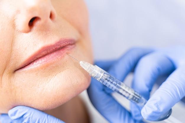 Bijgesneden foto van een volwassen blanke vrouw die een mesotherapieprocedure krijgt in een schoonheidssalon