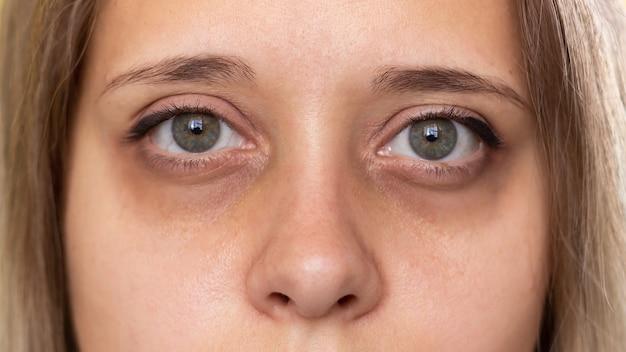 Bijgesneden opname van het gezicht van een jonge vrouw groene ogen met donkere kringen onder de ogen