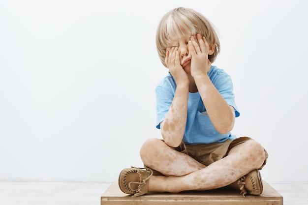 Binnenopname van schattig europees kind met mooi kapsel en vitiligo, zittend gezicht bedekt met handpalmen, verstoppertje spelen met oudere broer
