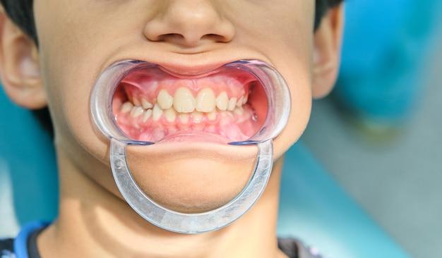 Blanke jongen met transparante plastic tandheelkundige mondopener