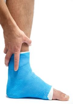 Blauwe spalk enkel. verbonden been dat op mannelijke patiënt op witte geïsoleerde muur wordt gegoten. sportblessure concept.