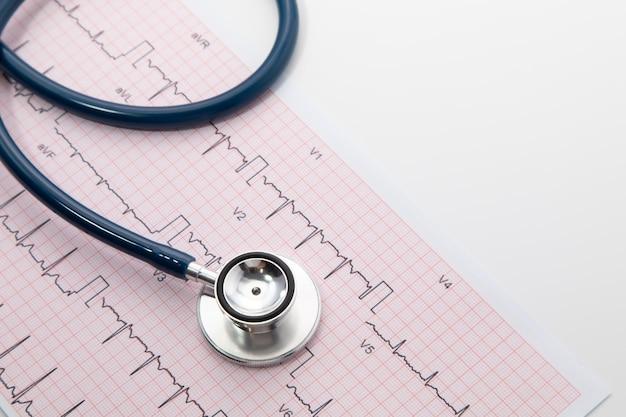 Blauwe stethoscoop op elektrocardiogram (ecg) grafiekpapier. ecg-hartgrafiekscan isoleren op wit. zorgverzekering en medische achtergrond