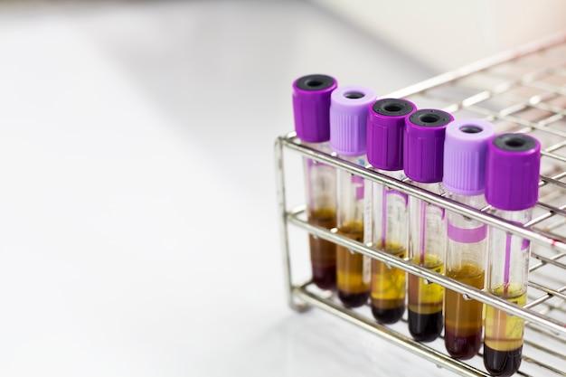 Bloed in de reageerbuis voor gebruik als een testmonster.