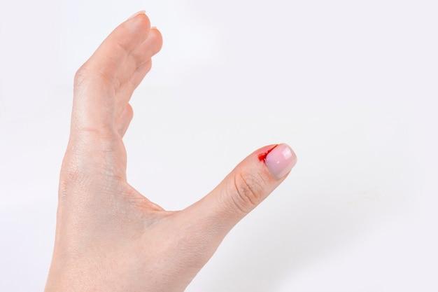 Bloeden nijnagel close-up vrouwelijke handblessure slechte gewoonten bijten en nijnagels afscheuren