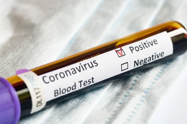 Bloedmonsterbuisje positief met covid-19 of nieuw coronavirus sars-cov-2.